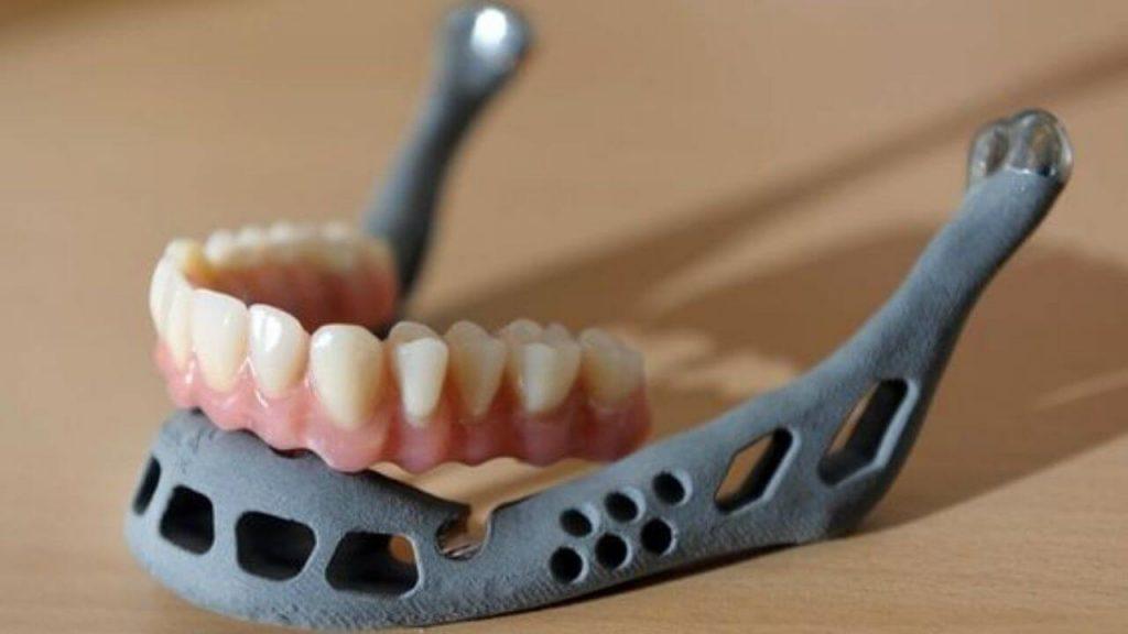 3D Printers For Medical & Dental